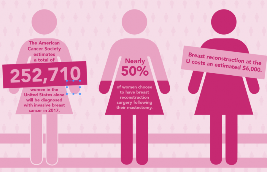 Breast+Reconstruction+at+the+U+Helps+Cancer+Patients+Complete+Recovery